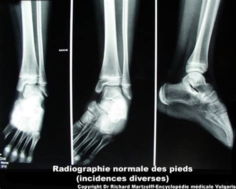 Image, Photo Pied (radiographie, incidences diverses