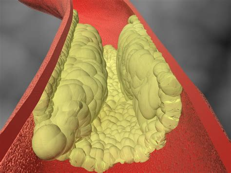 Vascular Blockages Linked to Memory Loss   Life Line Screening